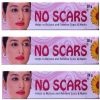 No Scars (Pack of 3)