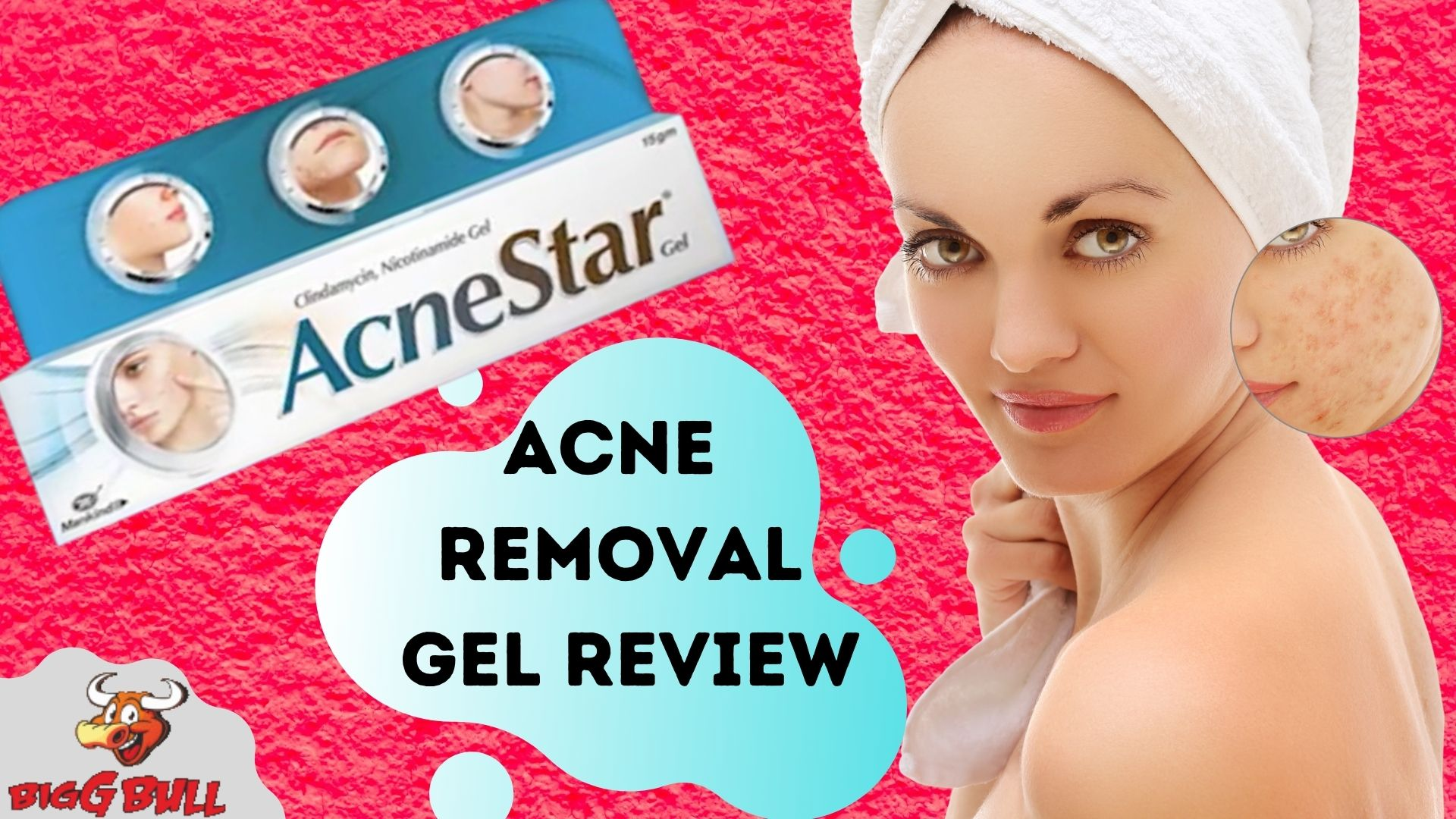 Mankind Acnestar Removal Gel Review